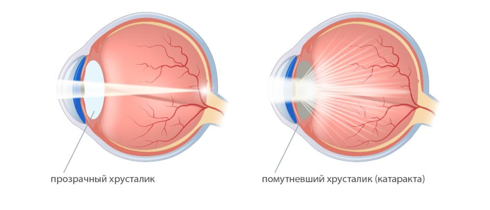 Как защитить глаза от катаракты: доступные методы